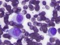 Histiocytoma (DQ)