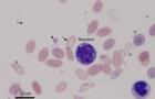 Reactive lymph & toxic band