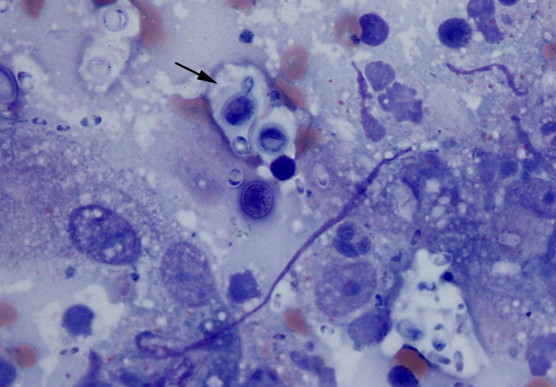 Infectious Agents Cytology Eclinpath