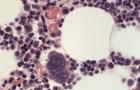Megakaryocyte & erythrophage (feline, H&E)