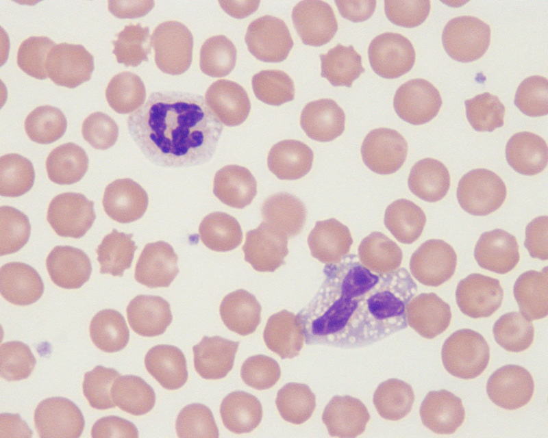 Hematology Archives | eClinpath Vacuolization Of Neutrophils