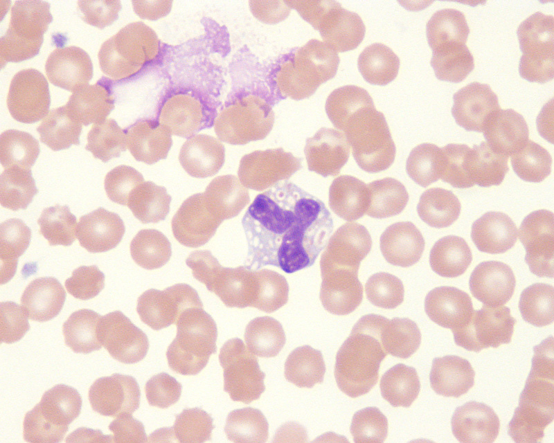 Canine blood | eClinpath Vacuolization Of Neutrophils