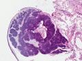 Trichoblastoma (dog, granular variant, H&E)