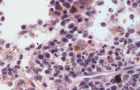 Hemophagocytic histiocytic sarcoma (dog, H&E)