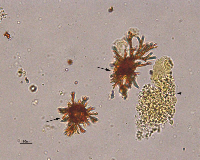 Urine Crystals Eclinpath