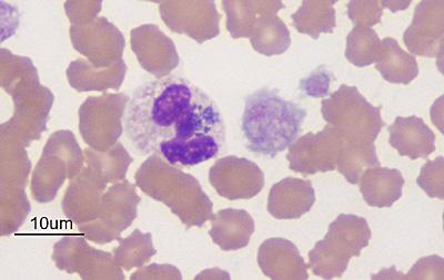 Figure 2 Blood Smear 1000x Wright S Stain Eclinpath