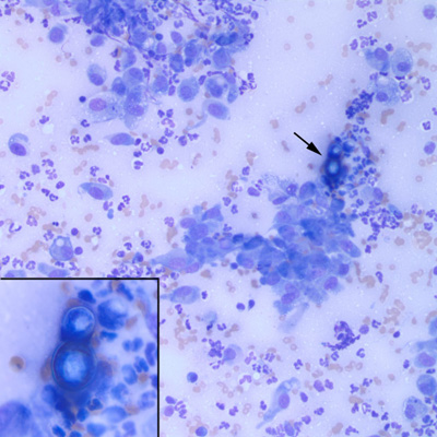 Figure 2 Blastomyces Dermatitidis Yeast 20x Amp 50x Inset