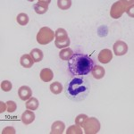 Mast cell in blood