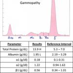 Monoclonal gammopathy electrophoretogram