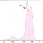 Split monoclonal gammopathy