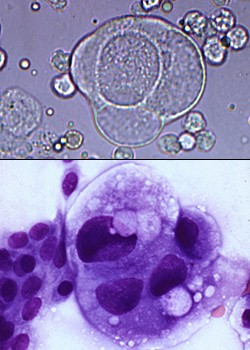 Unstained and stained neoplastic epithelial cells in urine ...