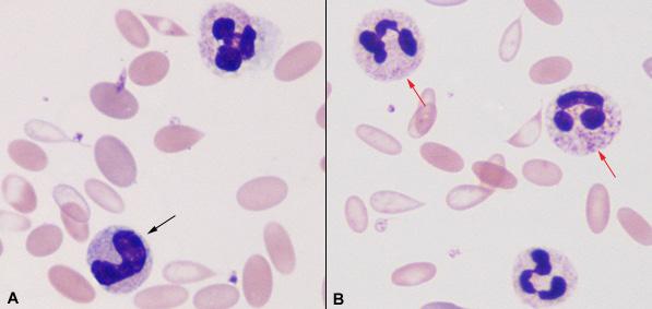 Toxic changes of neutrophils in an Alpaca | eClinpath Vacuolization Of Neutrophils