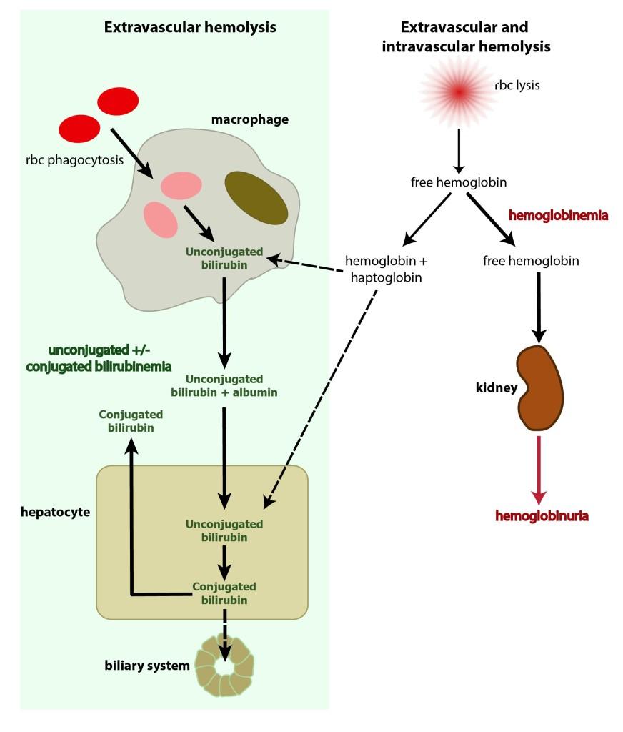 Bilirubin And Hemolytic Anemia Eclinpath