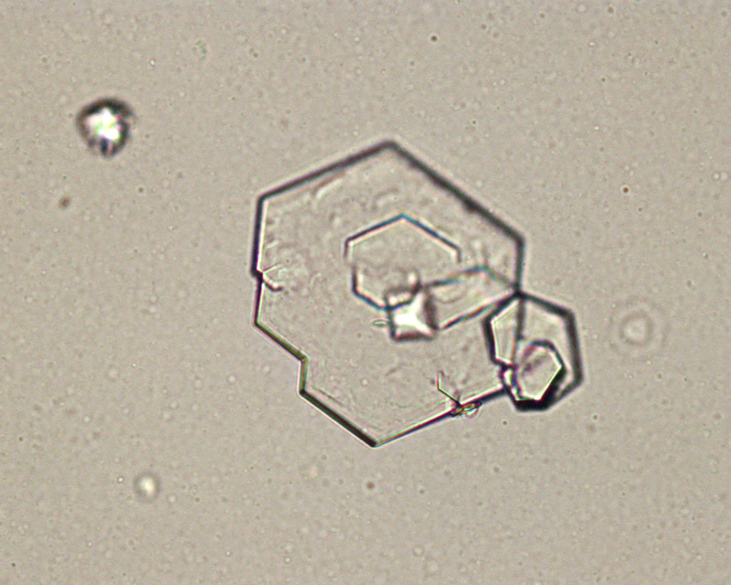 Cystine Crystals Eclinpath