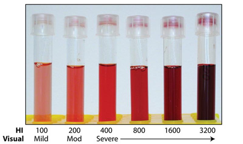 http://eclinpath.com/wp-content/uploads/hemolytic-index-tubes.jpg