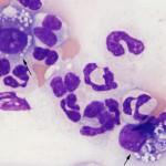 Histiocytes