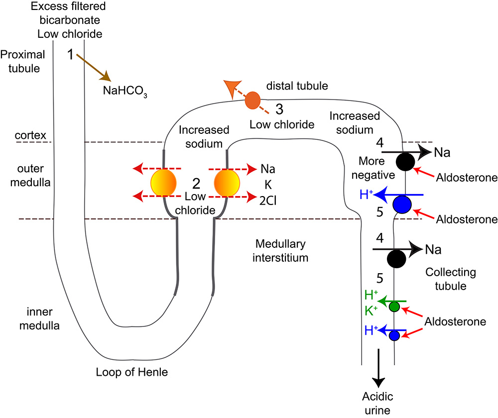 Renal Contribution To Metabolic Alkalosis Eclinpath