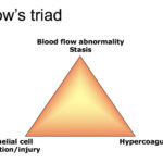 Virchow's triad